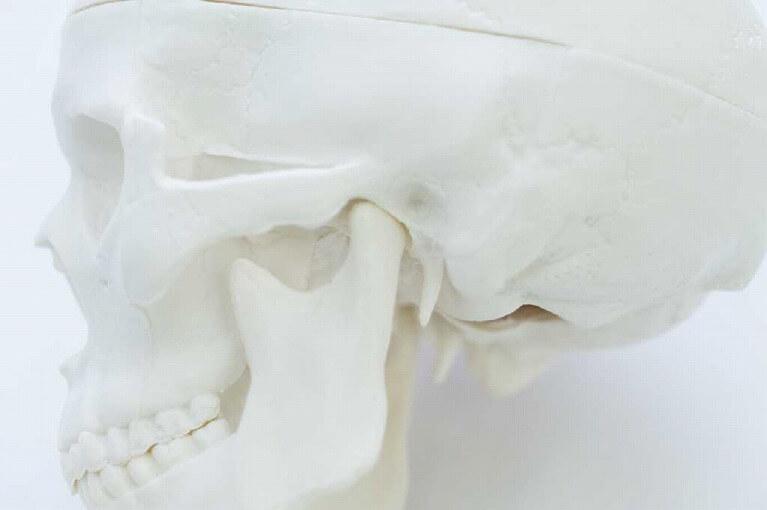 噛み合わせ。顎関節症治療