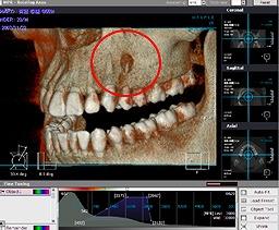 CT 3D画像
