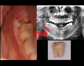 口腔内写真とパノラマXray写真
