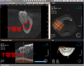CT画像(3次元)