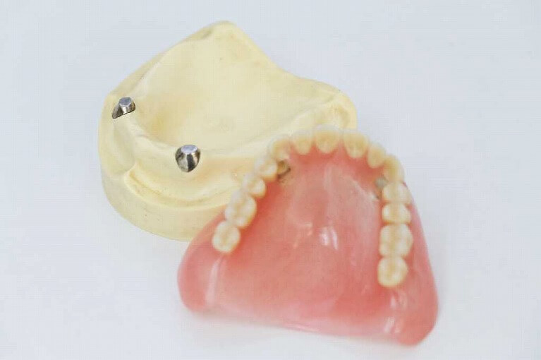 マグネット式義歯をご存知ですか?